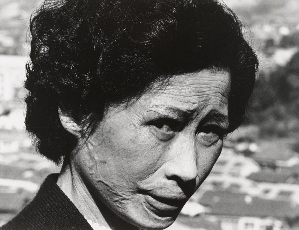 تُماتسو شُمِئی. هیباکوشا تسویو کاتائوکا با زخمهای کلوئید روی صورتش، ناگازاکی، 1961